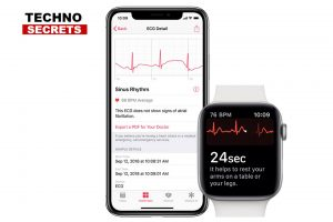 Apple WatchOS 5.1.2: new updates with ECG and much more.