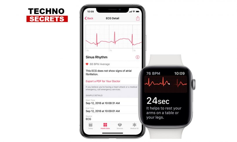 Apple Watch Electrocardiogram App and Irregular Heart Rhythm Notifications Available Today
